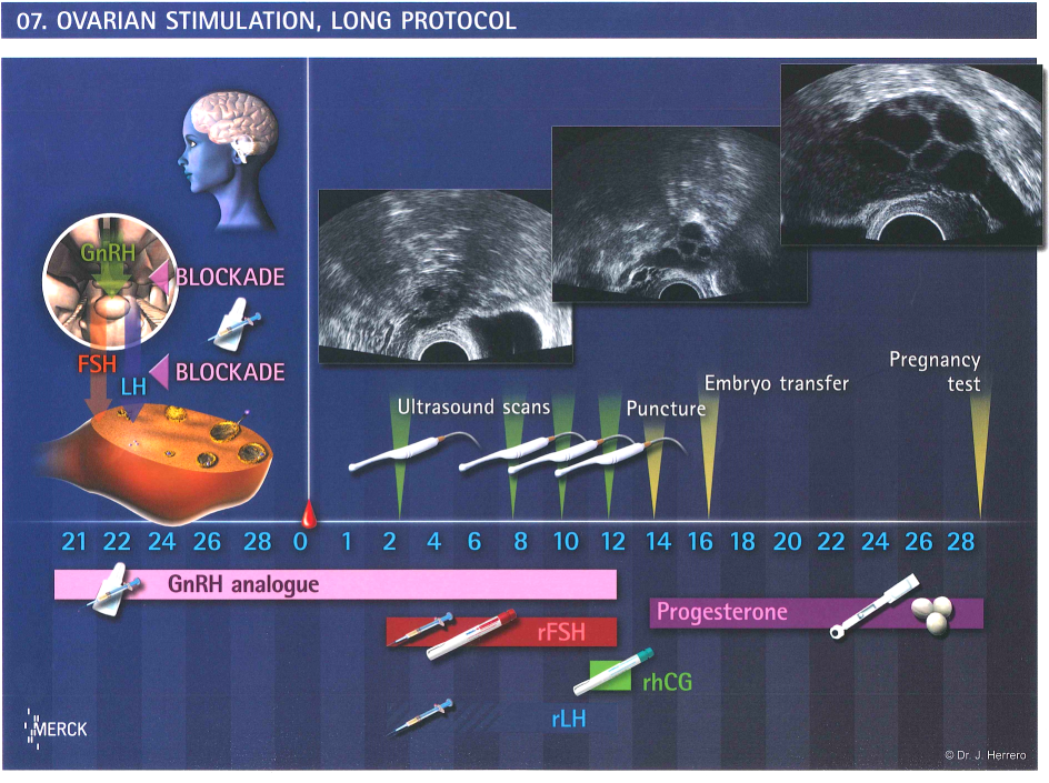 Follicle development clomid