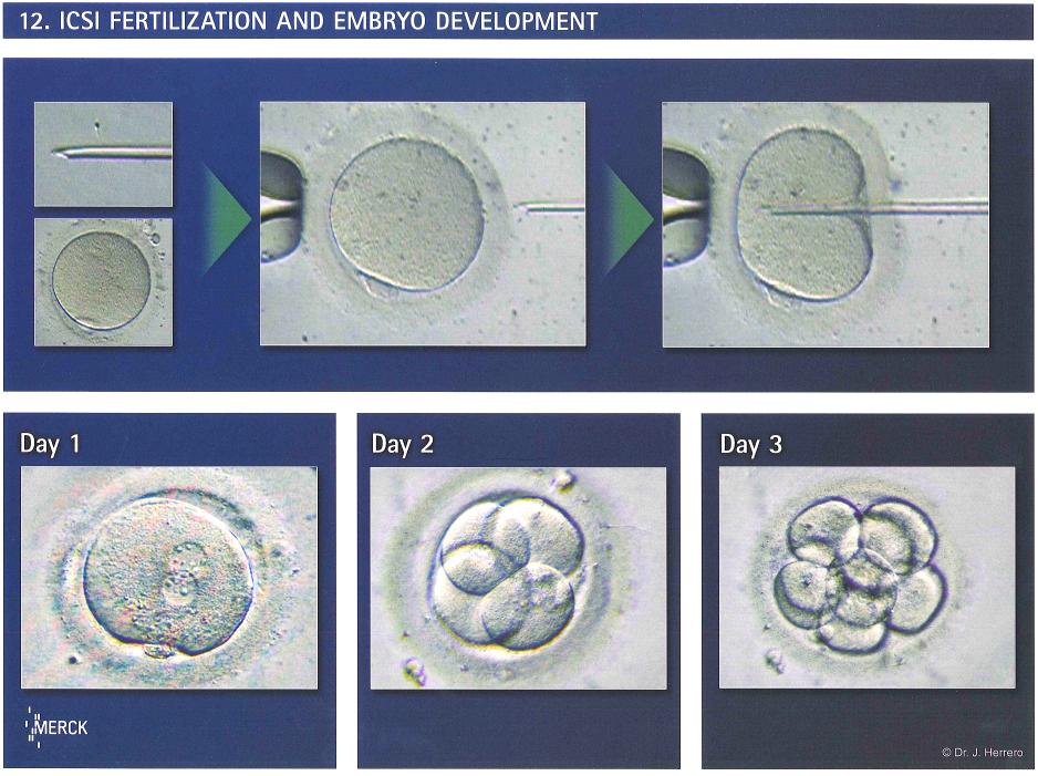 Tech for semen extraction - 3 part 5